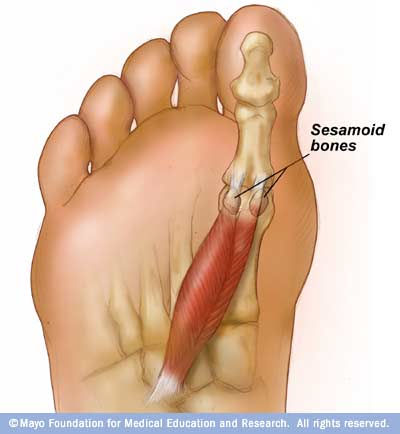 Notice how the sesamoid bones are intratendonous (within the tendon) with the Flexor hallucis brevis.